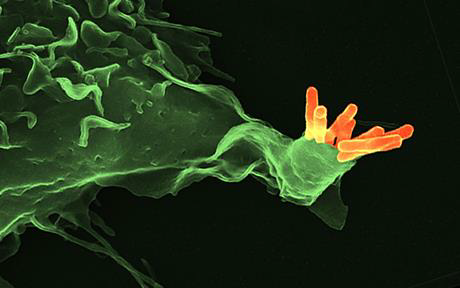 Mycobacterium tuberculosis (naranja) unida a la superficie de una célula humana (verde). Kaufmann S.H.E. Nature. 2008 May 15;453: 295-6. Figura: Volker Brinkmann, Core Facility Microscopy, Max Planck Institute for Infection Biology, Berlin.-